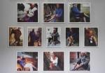 图为:饱受烂脚病折磨的老人照片集。 王刚 摄 - 浙江新闻网